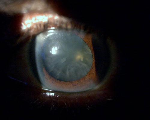 Eye Health Library